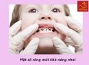 Những dấu hiệu sâu răng